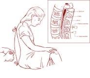 Ilustração Epidural da injeção de bloco do nervo Fotografia de Stock Royalty Free