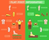 Ilustração lisa do vetor da doença de pé ilustração stock