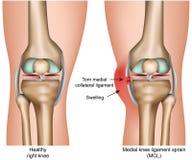Ilustração médica do vetor da entorse central do ligamento do joelho isolada no fundo branco infographic ilustração royalty free
