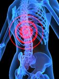 Ilustración del dolor de espalda Foto de archivo libre de regalías