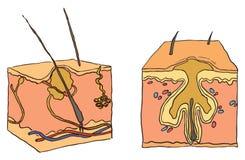 Ilustración para el acné Imágenes de archivo libres de regalías