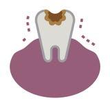Ilustracja gnijący ząb ilustracja wektor