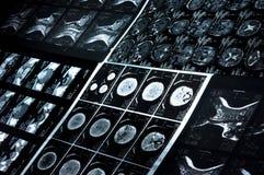Imágenes de la exploración del CT Imagen de archivo