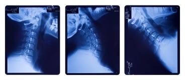 Imágenes de la radiografía de la espina dorsal del cuello Foto de archivo