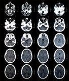 Imágenes del cerebro del CT Fotografía de archivo libre de regalías