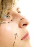 Im Gesichtschönheitsoperation Lizenzfreie Stockfotografie