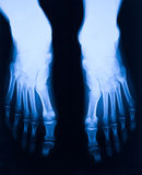 Foot xray Stock Photography