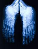 Foot xray Stock Photo