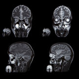 image of the brain computed tomography Stock Images