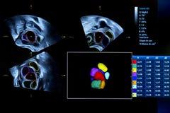 Image colorée de moniteur d'ultrason de grossesse Photos libres de droits