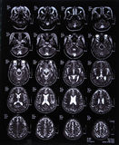 Image de balayage d'IRM de cerveau Photographie stock