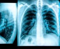 Image de radiographie de la poitrine Photos libres de droits