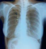Image de radiographie de la poitrine de femme en bonne santé Images libres de droits