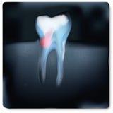 Image de rayon X avec douleur de dent illustration de vecteur