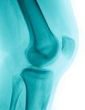Image de rayon X d'un genou Image libre de droits