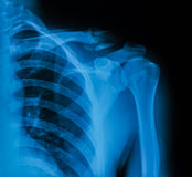 Image de rayon X de clavicule, vue d'AP photos stock