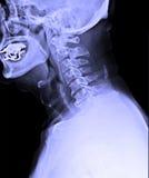 Image de rayon X de l'épine cervicale humaine masculine Image libre de droits
