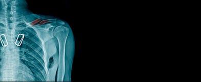 Image de rayon X de fracture de clavicule photographie stock