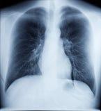 Image de rayon X de coffre sain Photos libres de droits