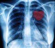 Image de radiographie de la poitrine Photographie stock libre de droits
