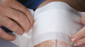 Doctor Applying a New and Clean Bandage on a Foot Wound stock photos