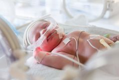 Image of the premature baby in incubator royalty free stock images