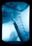 The image of x-ray upper gastrointestinal (UGI), Esophagram. Royalty Free Stock Photo