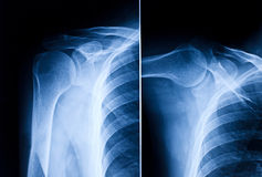 Shoulder x-ray. Image of shoulder blue xray royalty free stock image