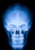 Skull x-ray Royalty Free Stock Photos