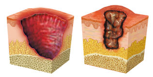 Ulceration. Image of two examples of ulcer or sore, open skin lesion or membrane Royalty Free Stock Photography