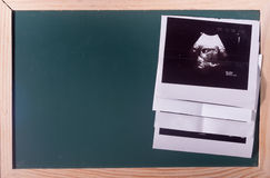 Image Ultrasound print with blackboard as background Stock Image