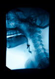 The image of x-ray upper gastrointestinal (UGI), Esophagram. Royalty Free Stock Image