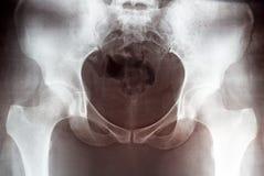 Imagem coberta da pelve fêmea, vista dianteira do raio X da terra arrendada da mão imagens de stock royalty free