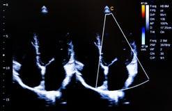 Imagem colorida do monitor do ultrassom Opinião de quatro câmaras fotos de stock