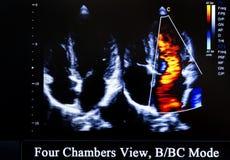Imagem colorida do monitor do ultrassom Opinião de quatro câmaras imagens de stock royalty free