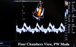 Imagem colorida do monitor do ultrassom Opinião de quatro câmaras imagens de stock