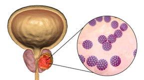 Imagem conceptual para o ethiology viral do câncer da próstata Imagem de Stock Royalty Free