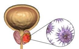 Imagem conceptual para o ethiology viral do câncer da próstata Imagens de Stock Royalty Free