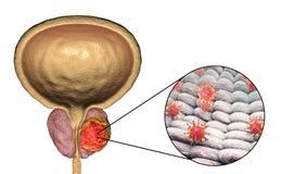 Imagem conceptual para o ethiology viral do câncer da próstata Fotografia de Stock Royalty Free