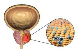 Imagem conceptual para o ethiology viral do câncer da próstata Fotografia de Stock