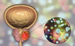 Imagem conceptual para o ethiology viral do câncer da próstata Foto de Stock Royalty Free
