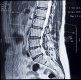 Imagem de MRI da espinha humana Fotos de Stock