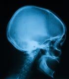 Imagem do crânio, vista lateral do raio X Imagem de Stock