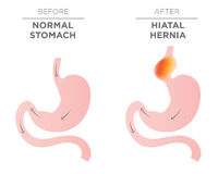 Imagem do estômago da hérnia do hiato ilustração stock