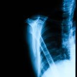 Imagem do raio X da articulação do úmero Foto de Stock