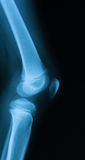 Imagem do raio X da articulação do joelho Imagens de Stock