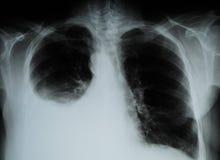 Imagem do raio X da caixa humana imagens de stock