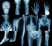 Imagem do raio X da coleção fotografia de stock