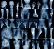 Imagem do raio X da coleção imagens de stock