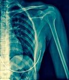 Imagem do raio X da opinião do AP do ombro Fotografia de Stock